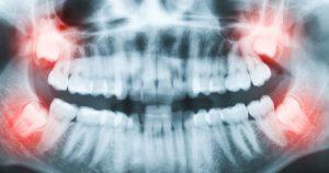 wisdom teeth removal Cleveland tn
