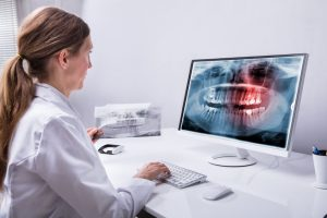 When it comes to wisdom teeth removal, there are some things to consider before scheduling your oral surgery.